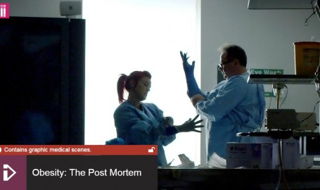 Obesity: The Post Mortem on BBC iPlayer